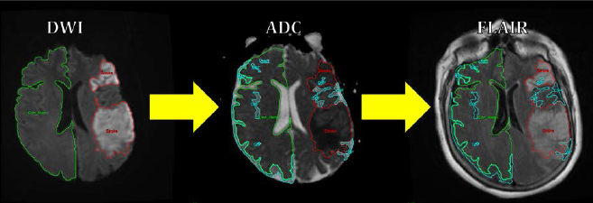 Neuroimaging tools for brain edema - Kimberly Lab